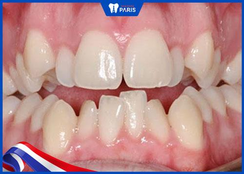 hình răng xấu