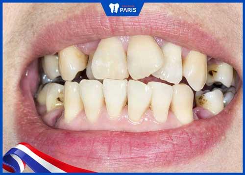 răng khểnh có tốt không