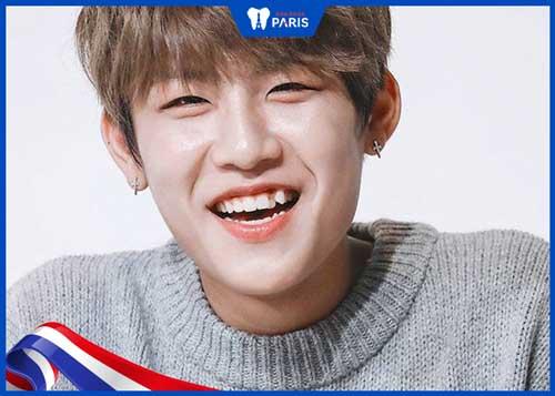 răng khểnh đẹp