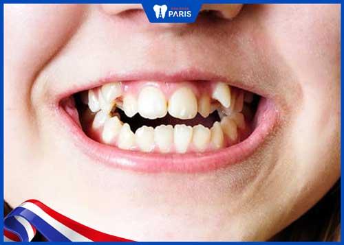 răng khểnh có hại không