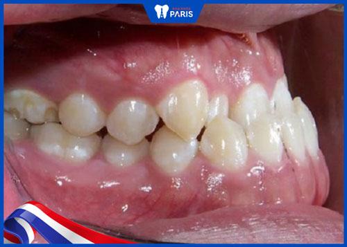 hàm răng xấu xí