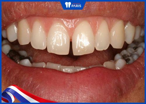 Răng cửa thưa