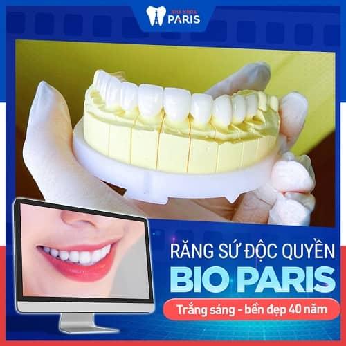 răng sứ bị sứt có được bảo hành không