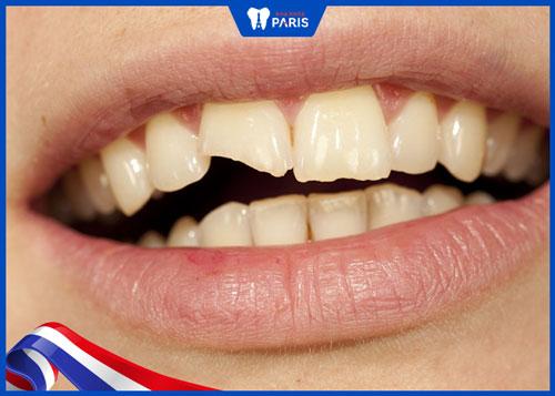 răng sứ bị sứt vỡ có sao không