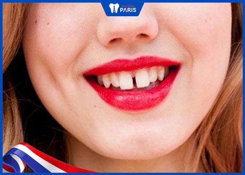 hàm răng xấu