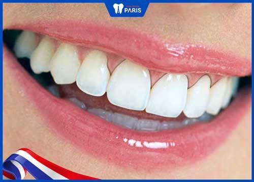bọc răng sứ titan bị đen viền nướu