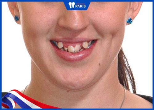 răng xấu không dám cười