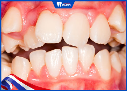 những hàm răng xấu