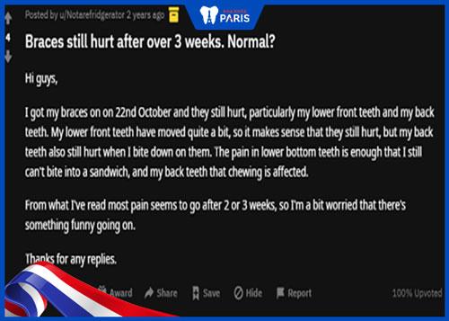 Niềng răng sau bao lâu thì hết đau