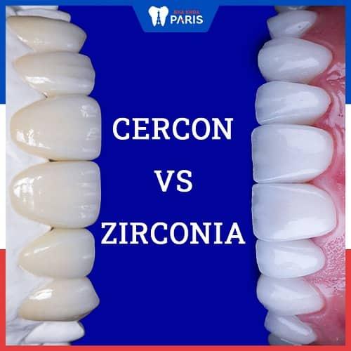 so sánh răng sứ cercon và zirconia