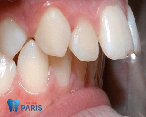 Hô xương ổ răng là gì