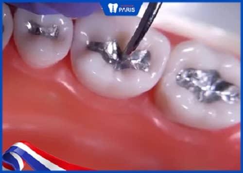 hàn răng sâu lỗ to với amalgam