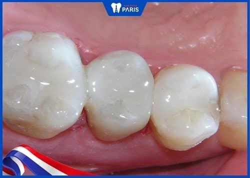 trám răng sâu lỗ to với composite