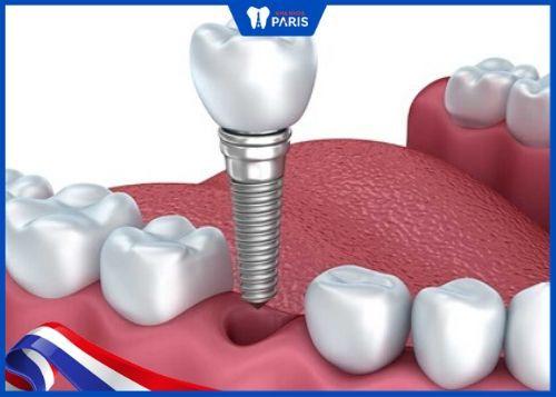 trồng răng giả số 6 với implant