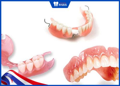 cách trồng lại răng sau khi nhổ
