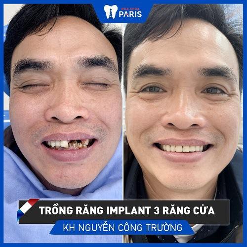 Cách điều trị răng thưa