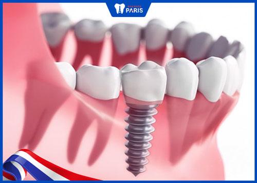 trồng lại răng sau khi nhổ với Implant