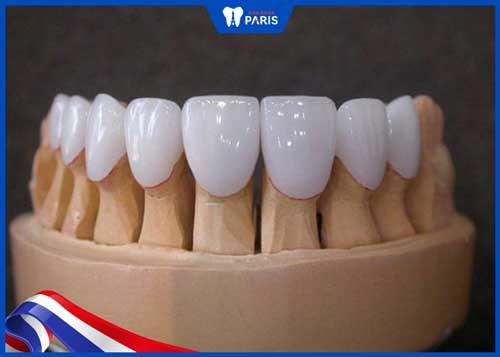 răng sứ titan sử dụng được bao lâu