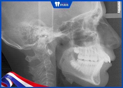 niềng răng có chữa vẩu được không