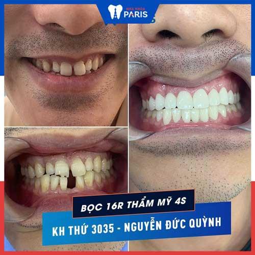 dán sứ 2 răng cửa
