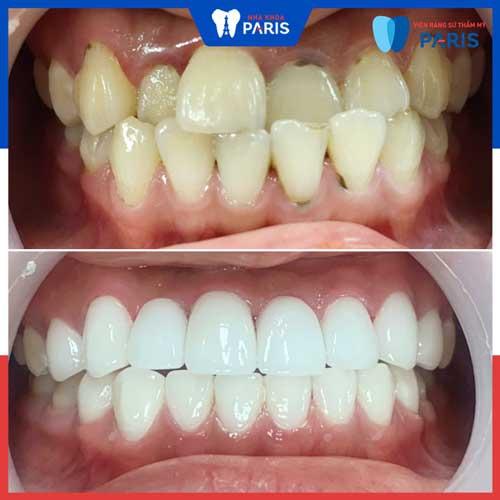 dán răng sứ veneers khác bọc sứ thế nào