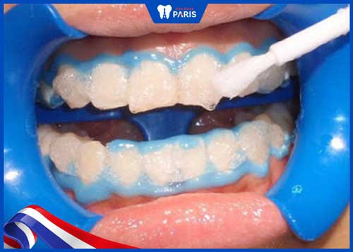 các bước tẩy trắng răng