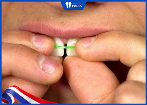 cách làm răng hết thưa tại nhà