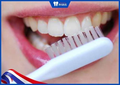 trị mảng bám trên răng