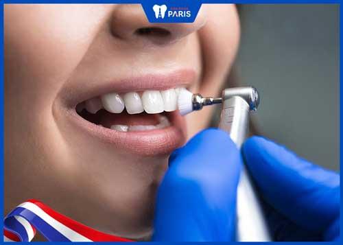 răng sứ bị ố vàng