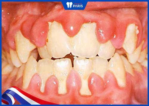 tác hại khi không lấy cao răng cho bé