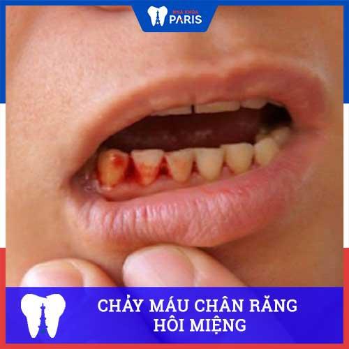 Chảy máu chân răng kèm hôi miệng là bệnh gì? Có Nguy hiểm không?