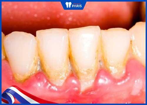 đánh răng bị chảy máu do cao răng