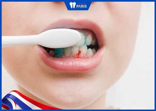 đánh răng hay bị chảy máu