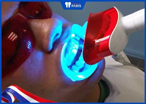 các bước tẩy trắng răng bằng đèn laser
