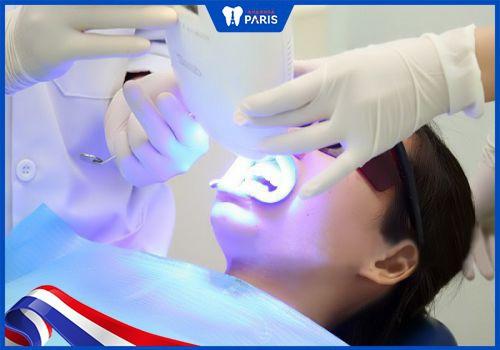 các bước tẩy trắng răng bằng laser