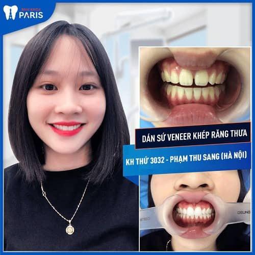 tự chữa răng thưa ở nhà có hiệu quả không