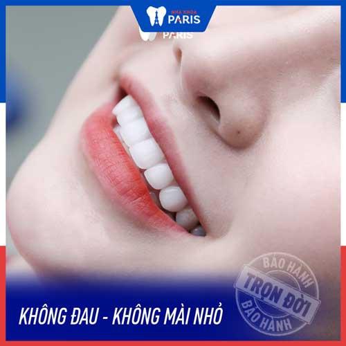 dán răng sứ có đau không
