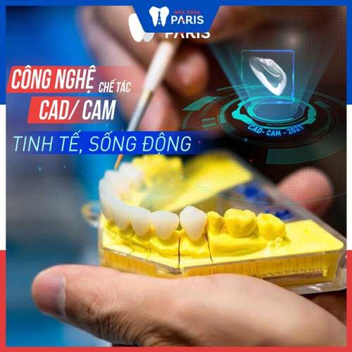 veneer emax hạn chế mài răng
