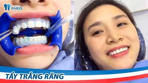 ưu điểm tẩy trắng răng laser whitening
