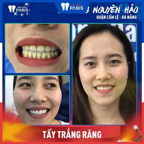 khách hàng tẩy trắng răng bằng laser