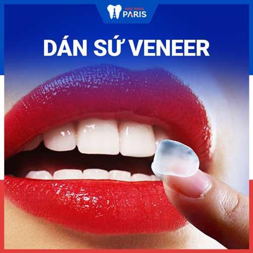 bọc răng sứ hay dán veneer