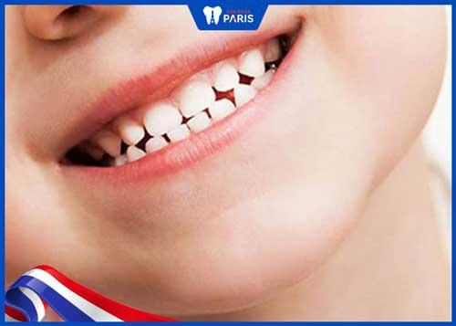 khi nào nên lấy cao răng cho bé
