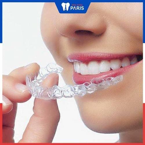 cách làm trắng răng ố vàng tại nhà