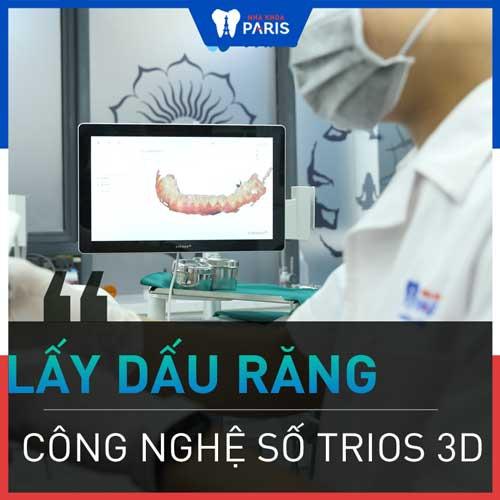 quy trình dán răng sứ