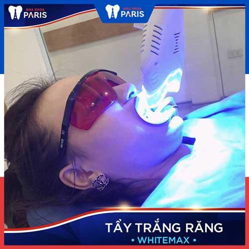 làm gì sau khi tẩy trắng răng