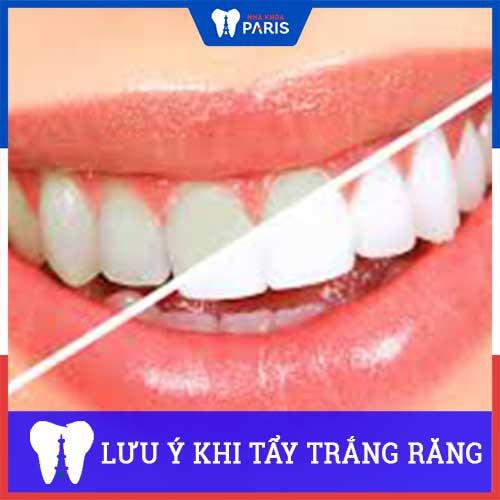 Những lưu ý Trước và Sau khi tẩy trắng răng quan trọng cần nhớ