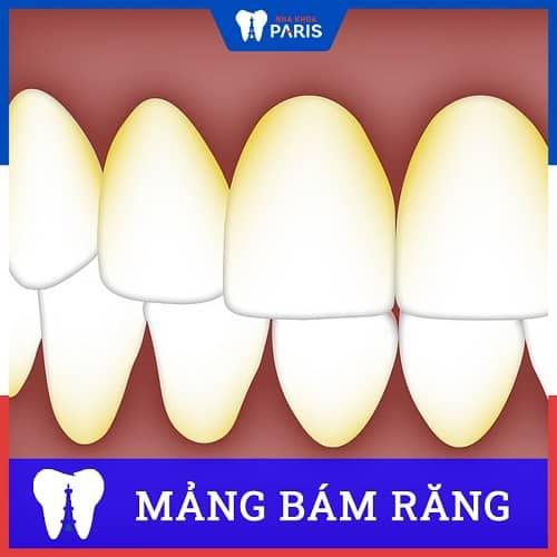 Mảng bám răng là gì? Khác gì cao răng? Loại bỏ thế nào?