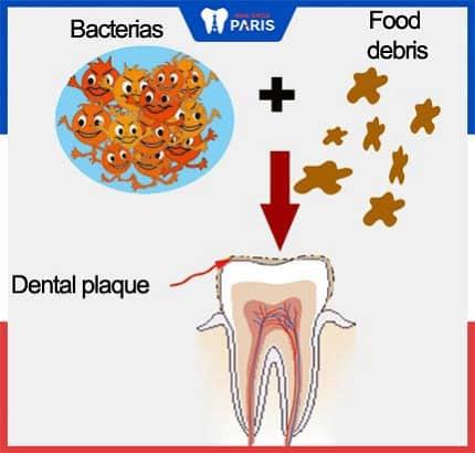 nguyên nhân gây mảng bám răng