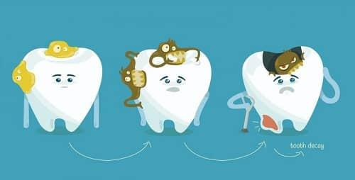 những ảnh hưởng từ mảng bám răng