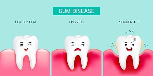 mảng bám răng gây tác hại gì